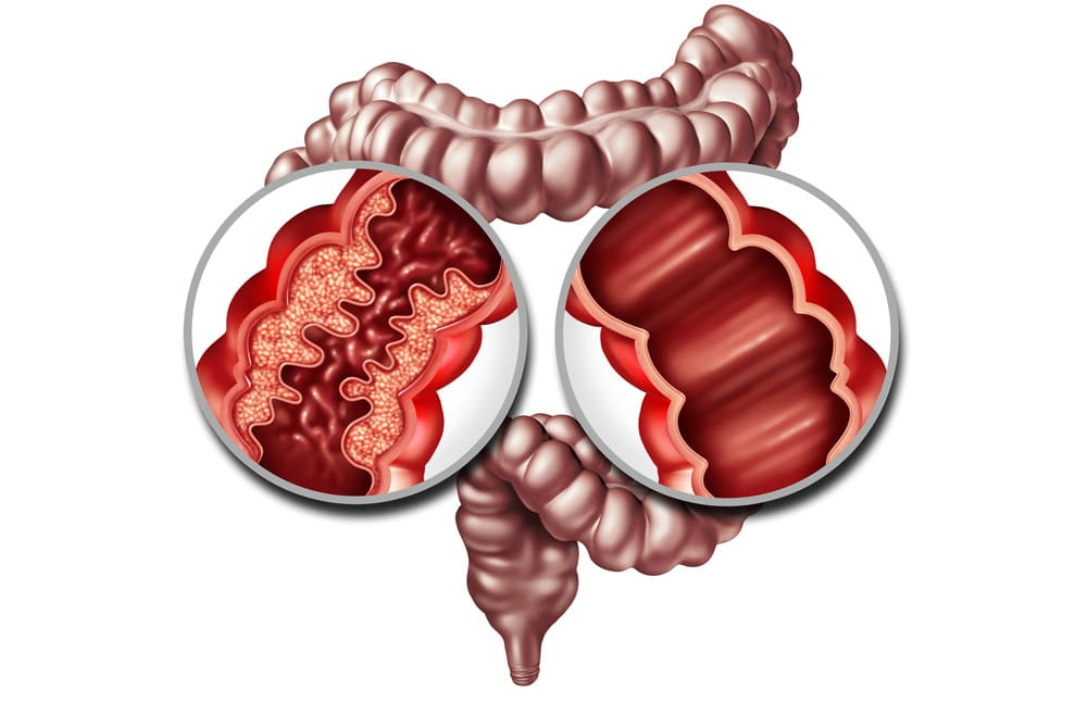 First-line Remicade Effective in Children with Crohn's