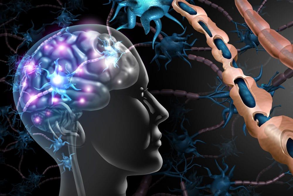 Multiple Sclerosis Treatment & Management 3D